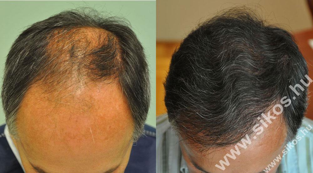 FUE hajbeültetés eredménye 3000 graft